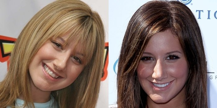Ashley Tisdale before her nose job in 2004 and after surgery in 2010