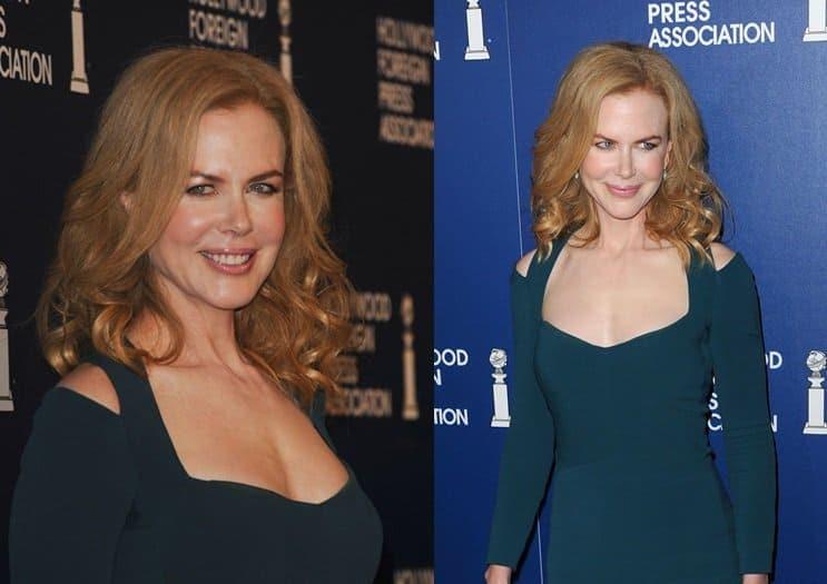 Nicole Kidman's cutout body-fit dress by Narciso Rodriguez