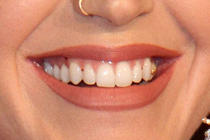 Katy Perry with a piece of gold Nike Swoosh teeth jewelry on her left premolar